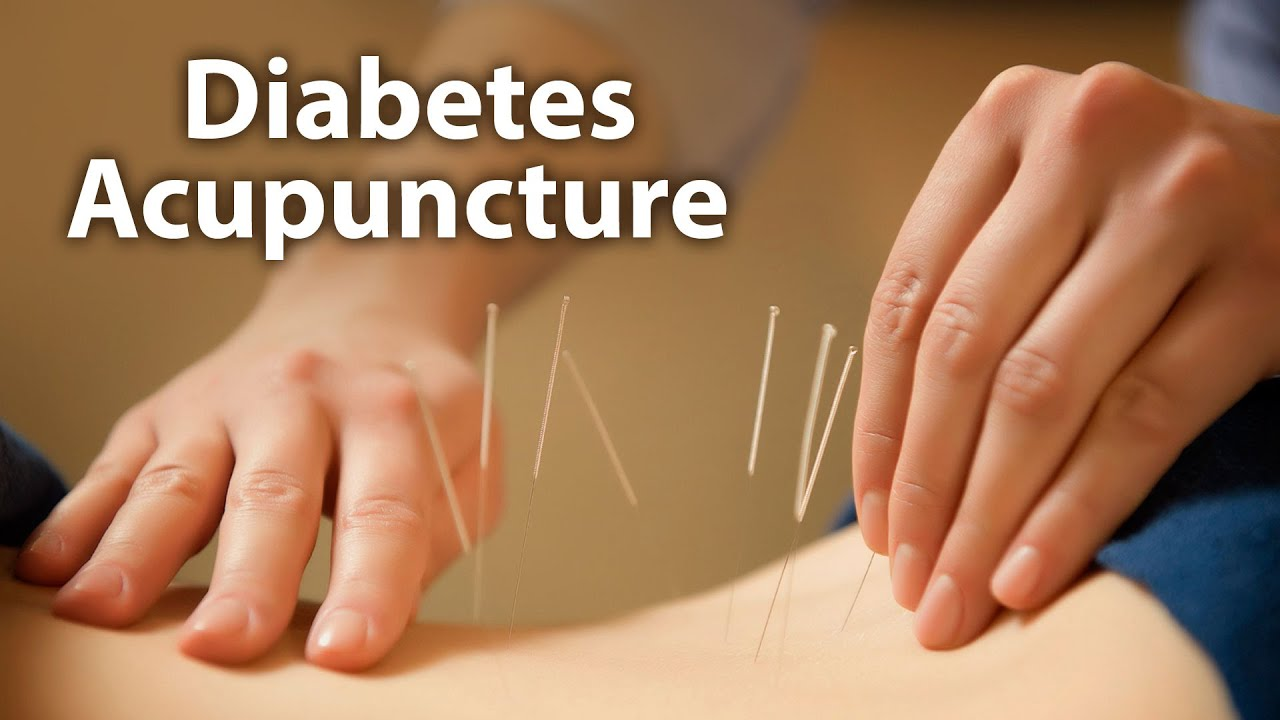 DIABETES AND ACUPUNCTURE