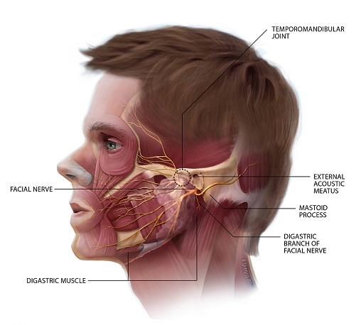 tmj-pain-and-migraine